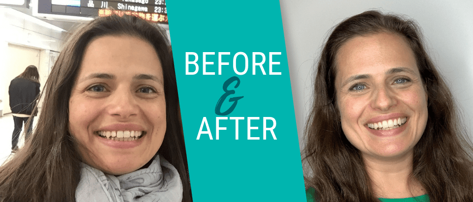 EZ Smile Before & After